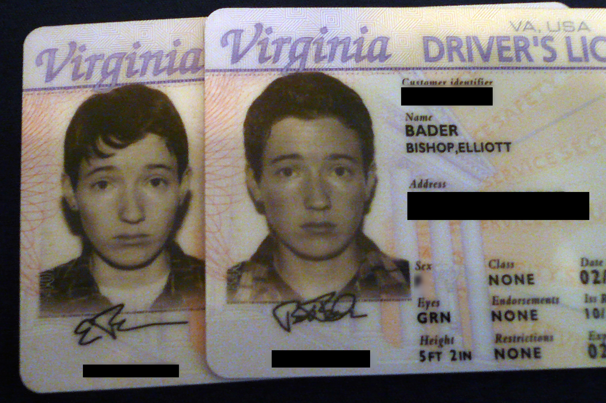 FTM Testosterone Before and After